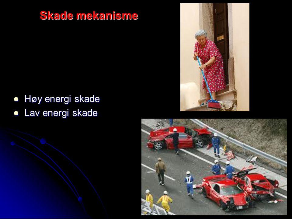 Skade mekanisme Høy energi skade Lav energi skade