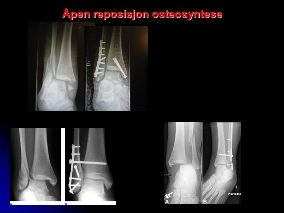 Åpen reposisjon osteosyntese