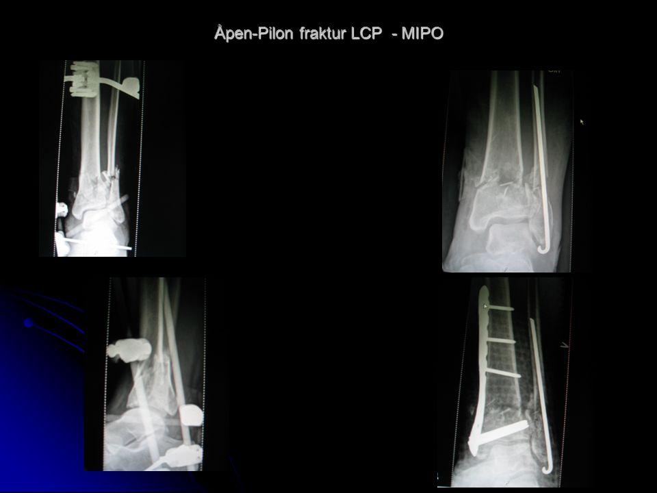 Åpen-Pilon fraktur LCP - MIPO