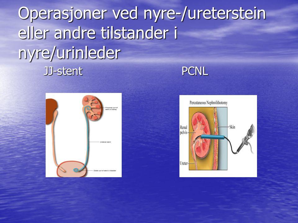Operasjoner ved nyre-/ureterstein eller andre tilstander i nyre/urinleder