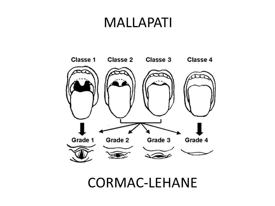 MALLAPATI CORMAC-LEHANE