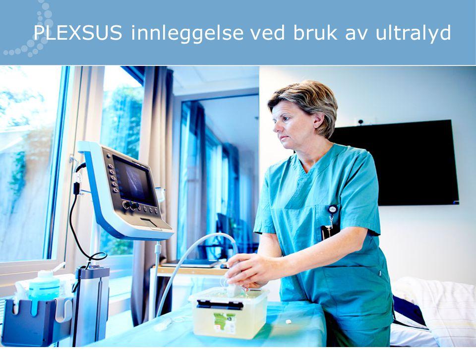 PLEXSUS innleggelse ved bruk av ultralyd