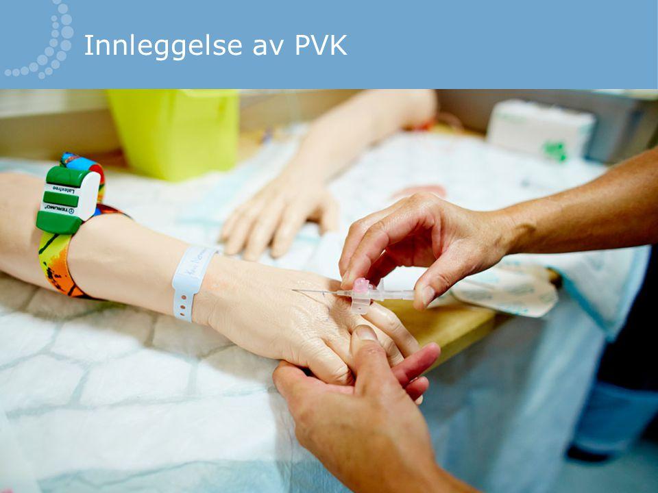 Innleggelse av PVK