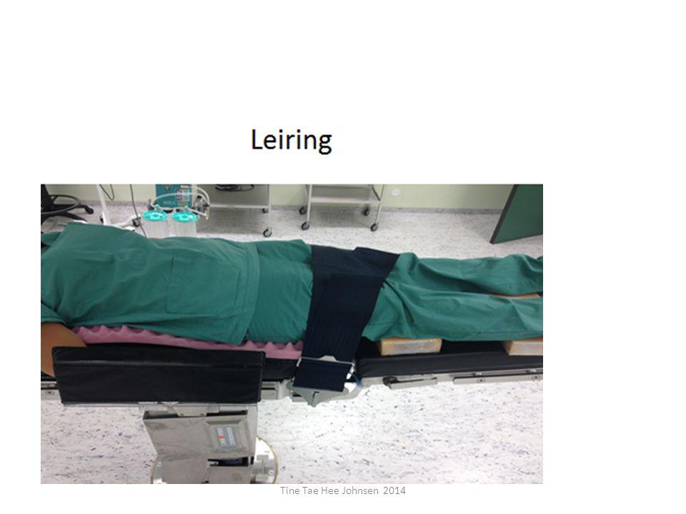 På bildet ser vi leiring til en laparaskopisk-kikkhul operasjon