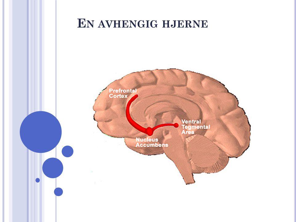 En avhengig hjerne