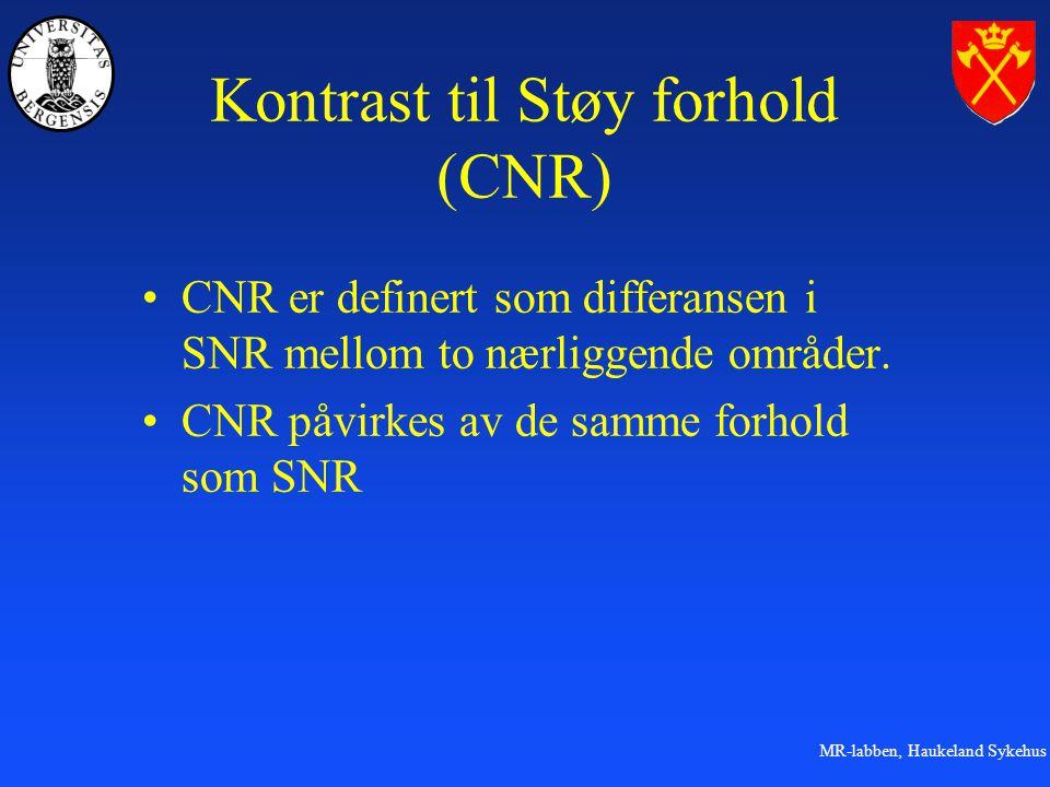 Kontrast til Støy forhold (CNR)