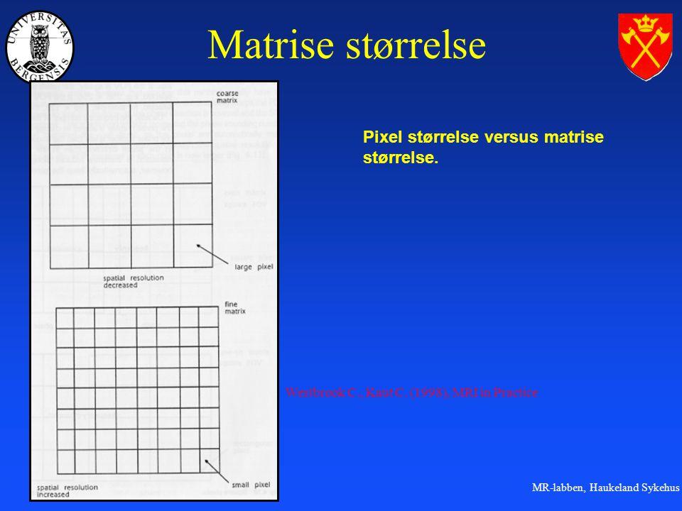 Matrise størrelse Pixel størrelse versus matrise størrelse.