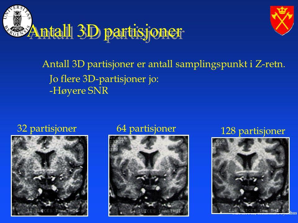Antall 3D partisjoner Antall 3D partisjoner er antall samplingspunkt i Z-retn. Jo flere 3D-partisjoner jo: