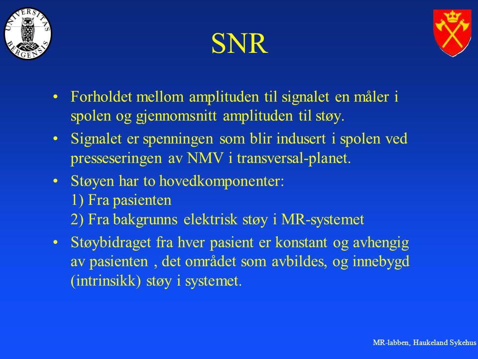 SNR Forholdet mellom amplituden til signalet en måler i spolen og gjennomsnitt amplituden til støy.