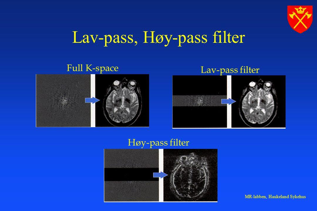 Lav-pass, Høy-pass filter