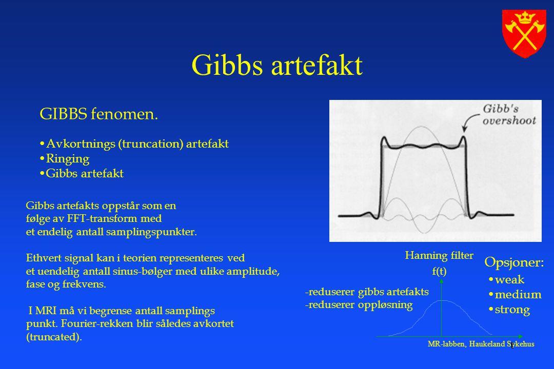 Gibbs artefakt GIBBS fenomen. Opsjoner: