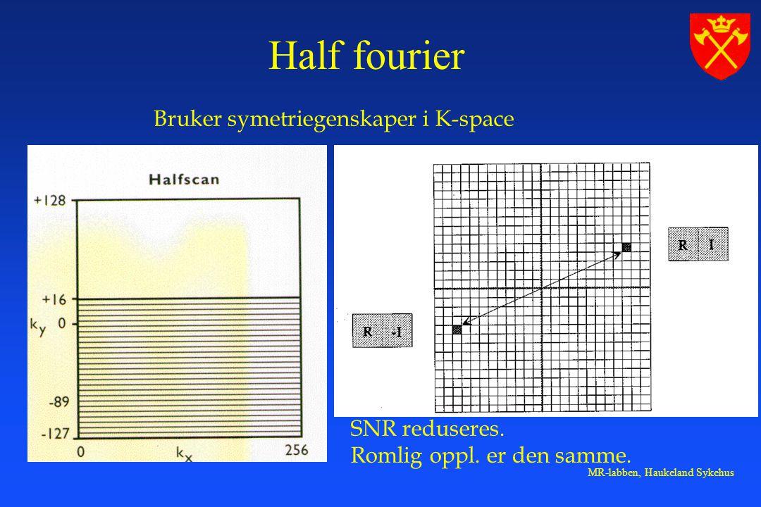 Half fourier Bruker symetriegenskaper i K-space SNR reduseres.