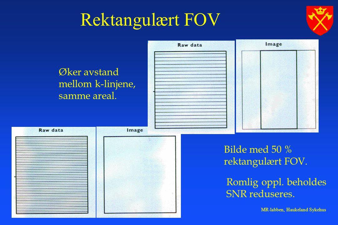 Rektangulært FOV Øker avstand mellom k-linjene, samme areal.