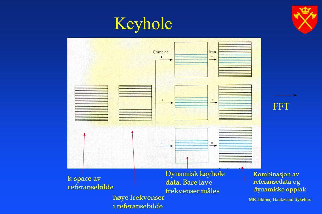 Keyhole FFT Dynamisk keyhole k-space av data. Bare lave referansebilde