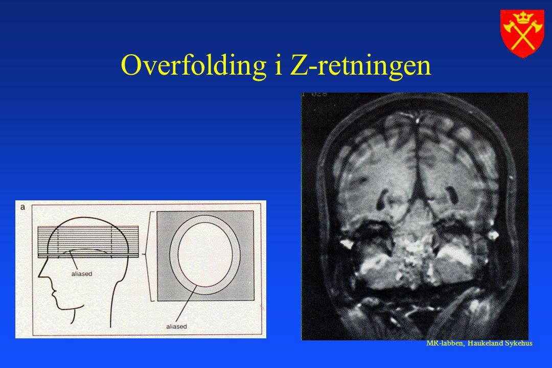 Overfolding i Z-retningen