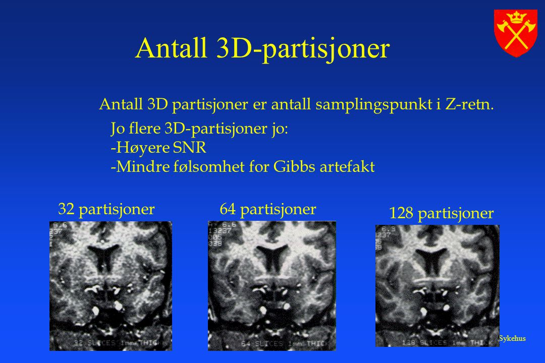 Antall 3D-partisjoner Antall 3D partisjoner er antall samplingspunkt i Z-retn. Jo flere 3D-partisjoner jo: