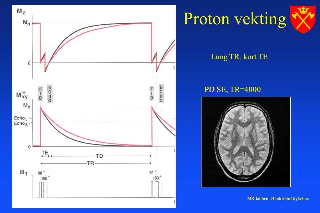 Proton vekting Lang TR, kort TE PD SE, TR=4000