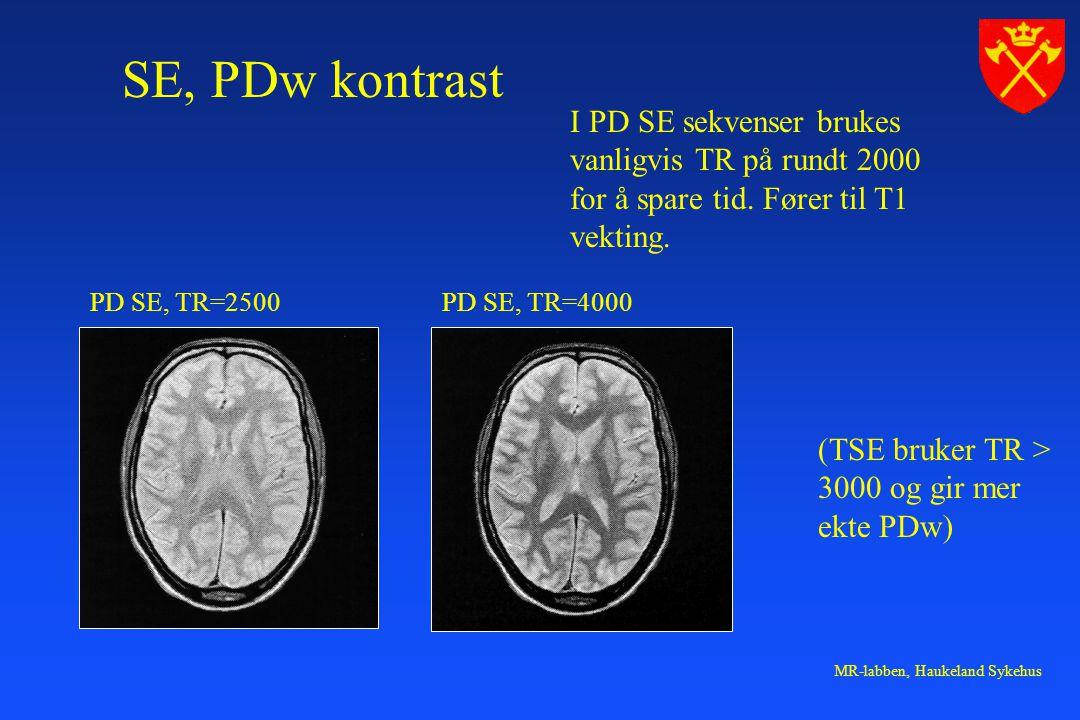 SE, PDw kontrast I PD SE sekvenser brukes vanligvis TR på rundt 2000