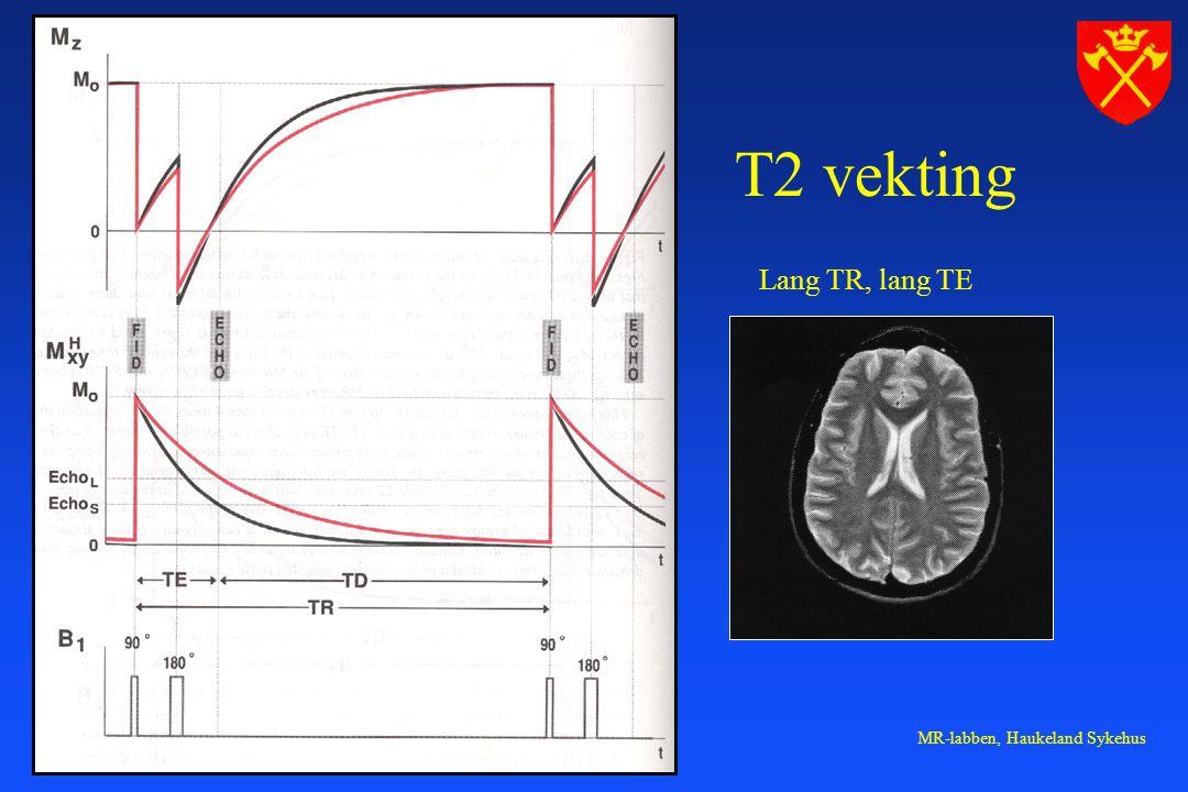 T2 vekting Lang TR, lang TE