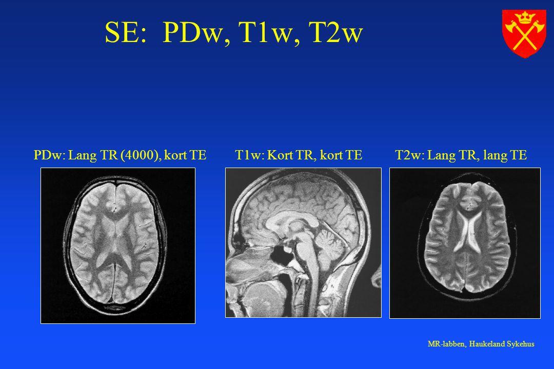 SE: PDw, T1w, T2w PDw: Lang TR (4000), kort TE T1w: Kort TR, kort TE