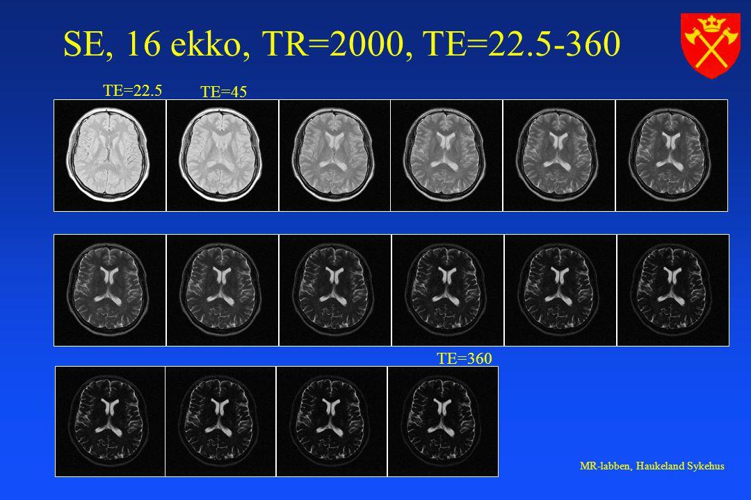 SE, 16 ekko, TR=2000, TE=22.5-360 TE=22.5 TE=45 TE=360