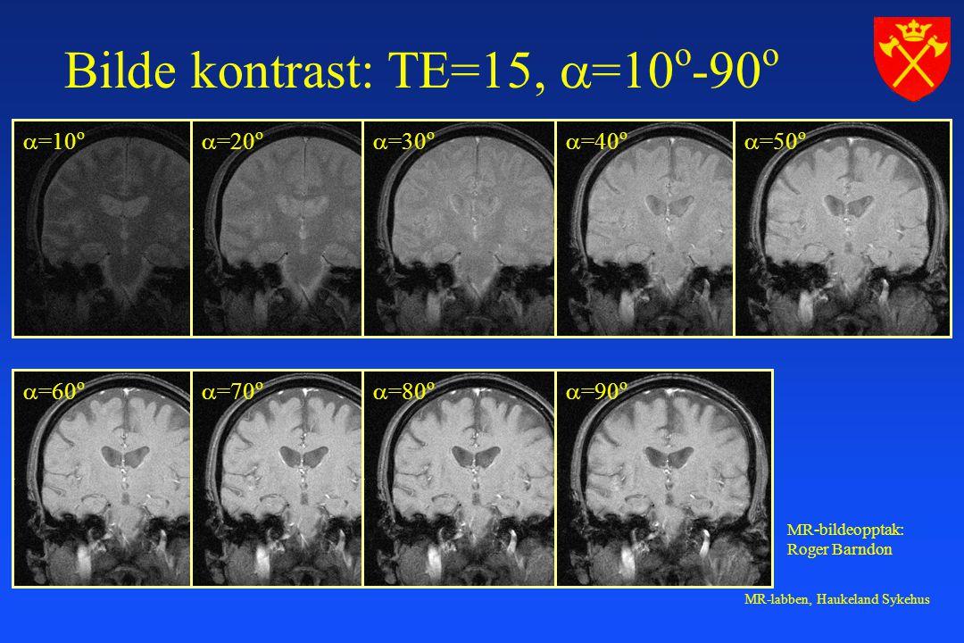 Bilde kontrast: TE=15, =10o-90o