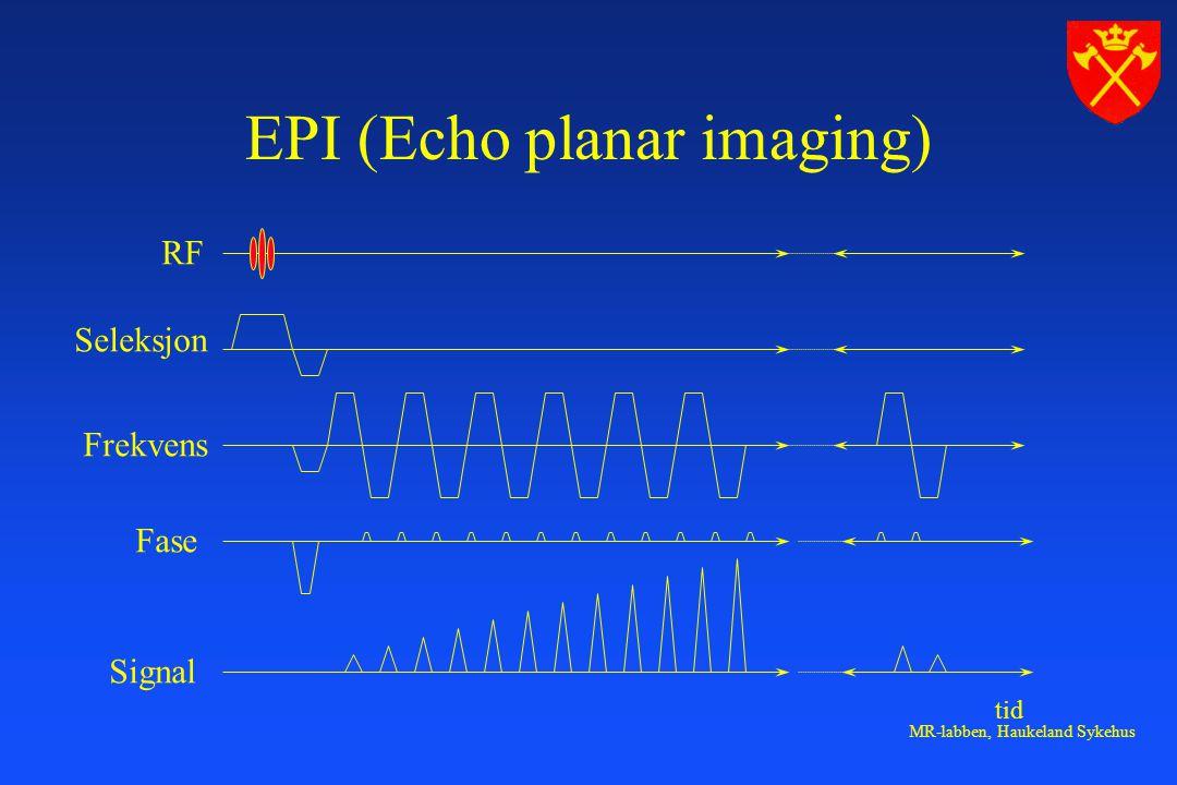 EPI (Echo planar imaging)