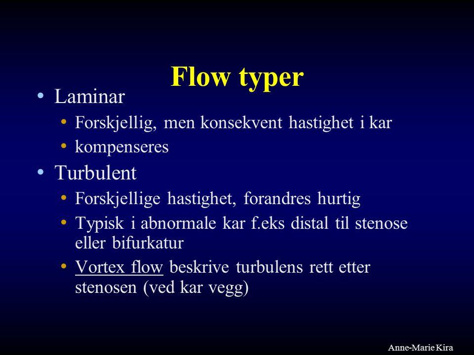 Flow typer Laminar Turbulent