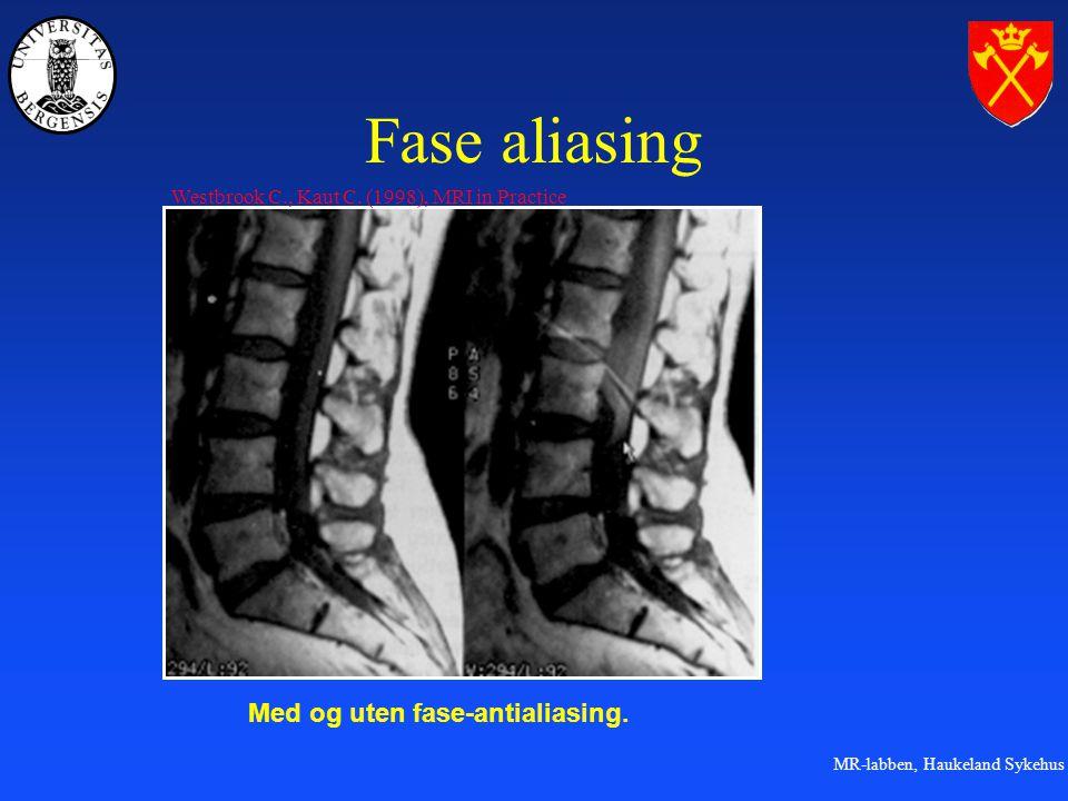Fase aliasing Med og uten fase-antialiasing.