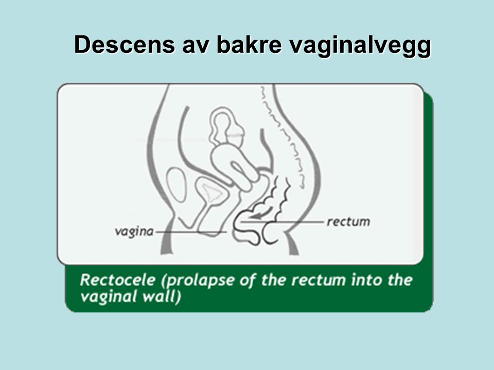 Descens av bakre vaginalvegg