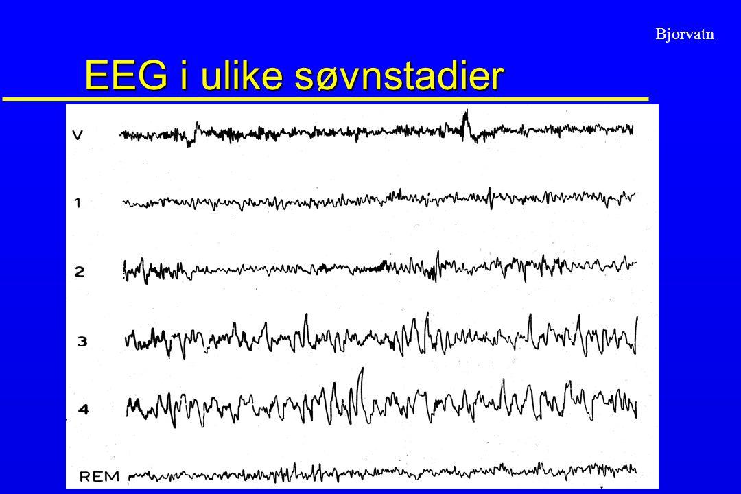 EEG i ulike søvnstadier