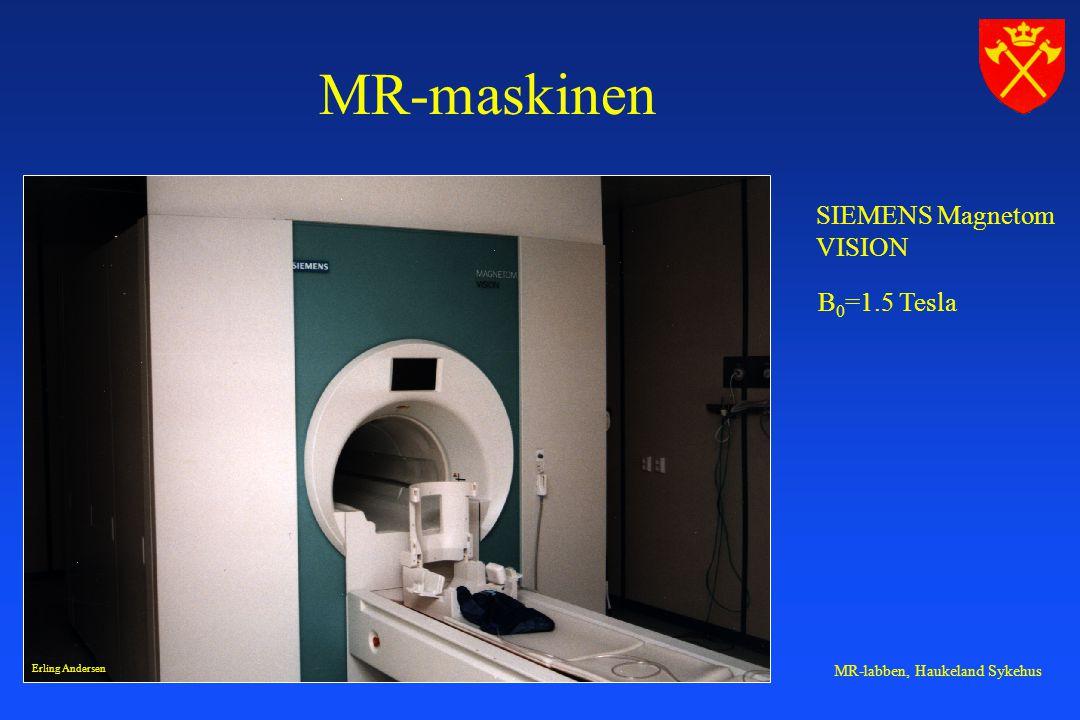 MR-maskinen SIEMENS Magnetom VISION B0=1.5 Tesla Erling Andersen