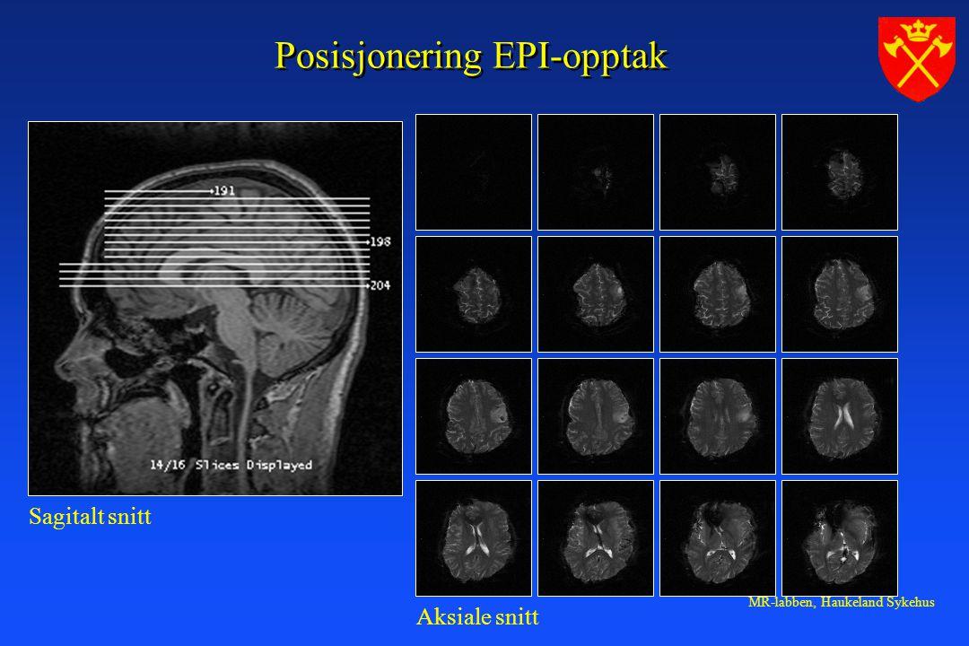 Posisjonering EPI-opptak