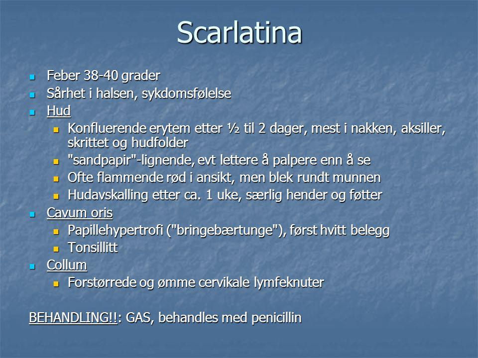 Scarlatina Feber 38-40 grader Sårhet i halsen, sykdomsfølelse Hud