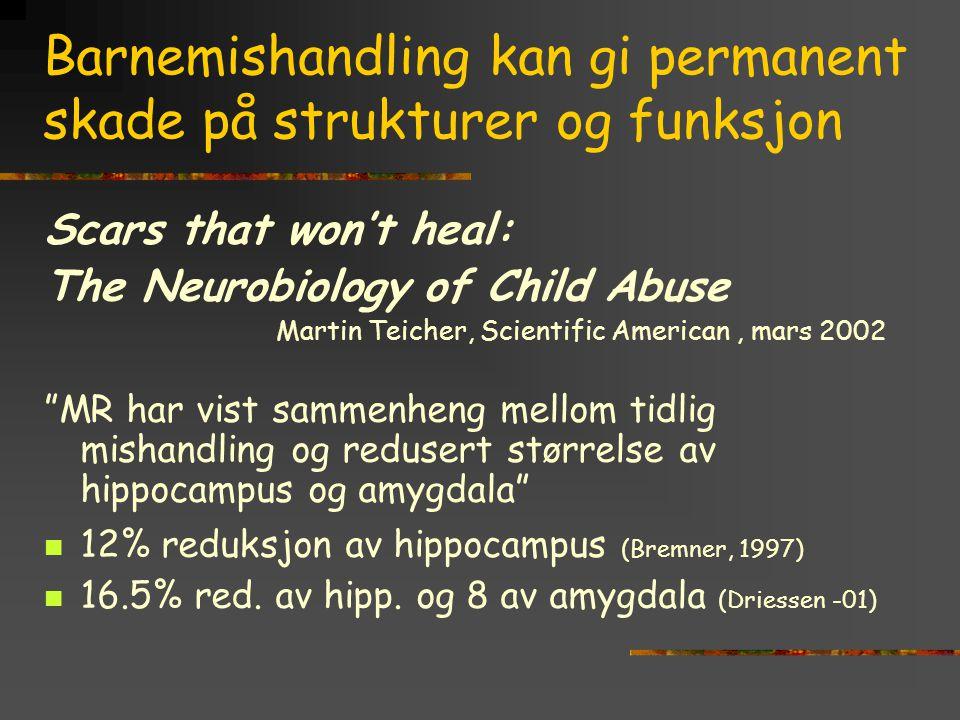 Barnemishandling kan gi permanent skade på strukturer og funksjon