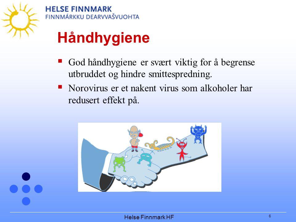 Håndhygiene God håndhygiene er svært viktig for å begrense utbruddet og hindre smittespredning.