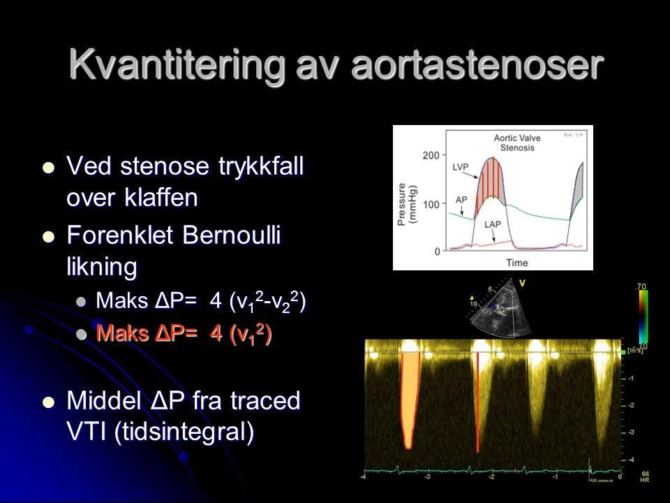 Kvantitering av aortastenoser