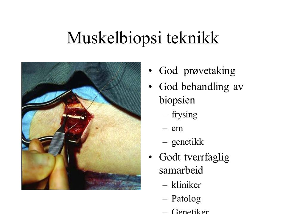 Muskelbiopsi teknikk God prøvetaking God behandling av biopsien