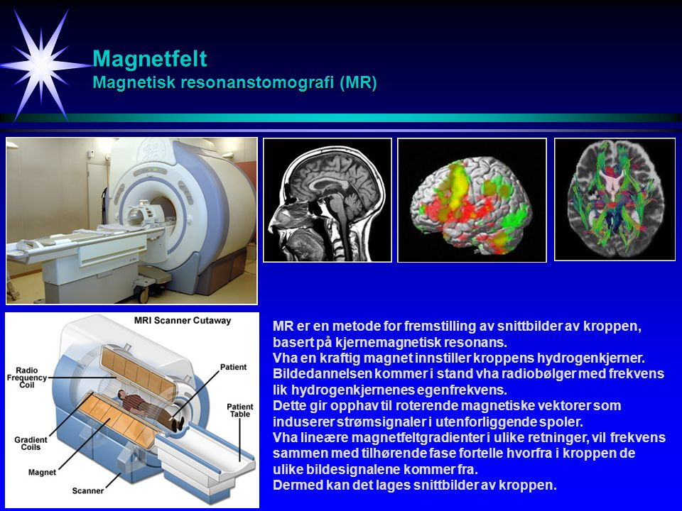 Magnetfelt Magnetisk resonanstomografi (MR)