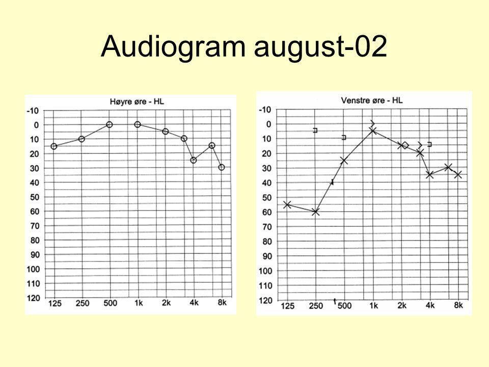 Audiogram august-02