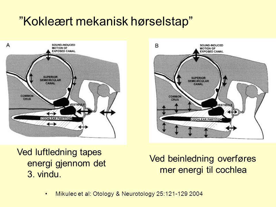 Kokleært mekanisk hørselstap