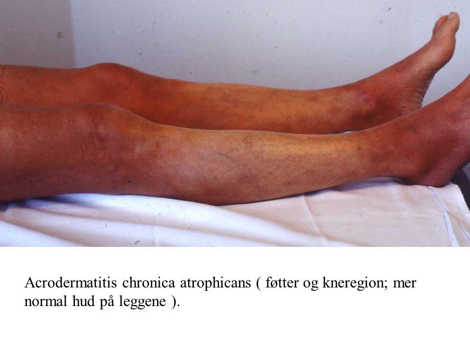 Acrodermatitis chronica atrophicans ( føtter og kneregion; mer normal hud på leggene ).