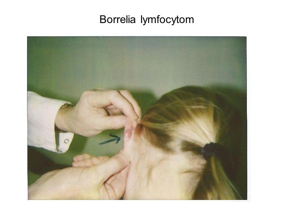 Borrelia lymfocytom