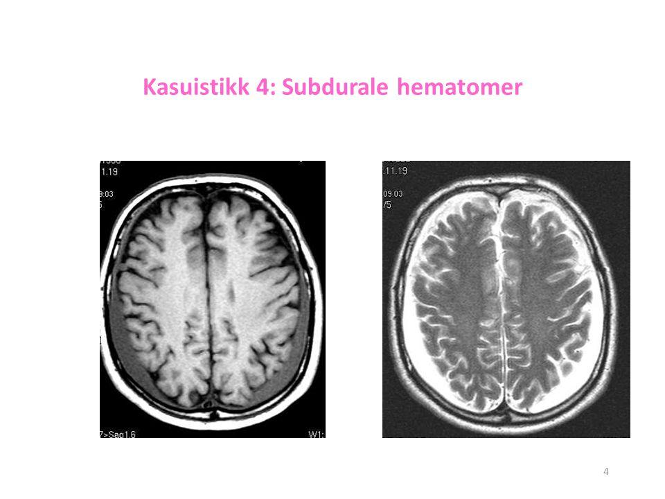 Kasuistikk 4: Subdurale hematomer