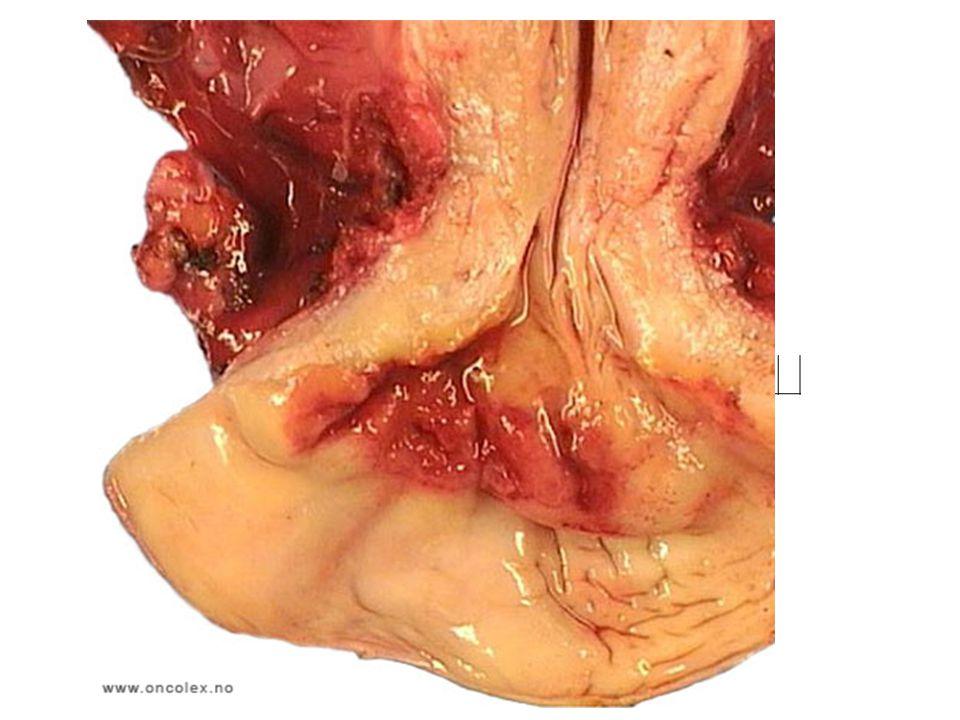 Livmorhalskreft – Histologi