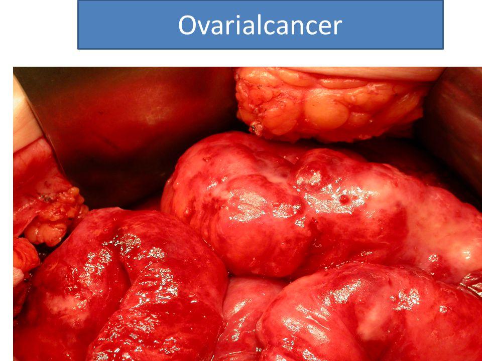 Avd for gynekologisk kreft