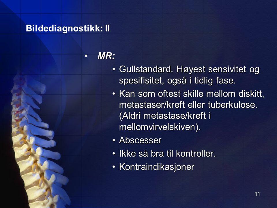 Bildediagnostikk: II MR: Gullstandard. Høyest sensivitet og spesifisitet, også i tidlig fase.