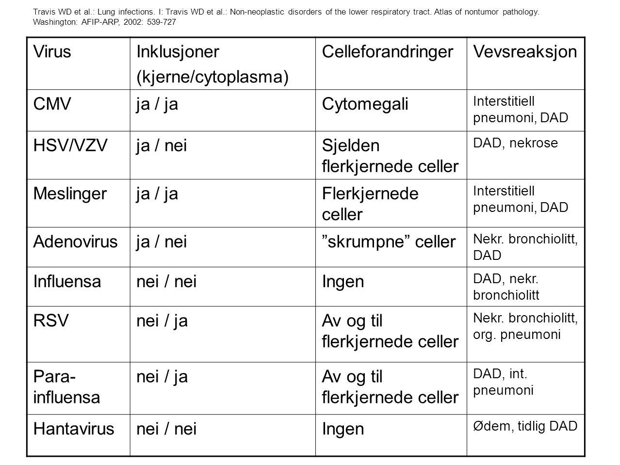 Sjelden flerkjernede celler Meslinger Flerkjernede celler Adenovirus