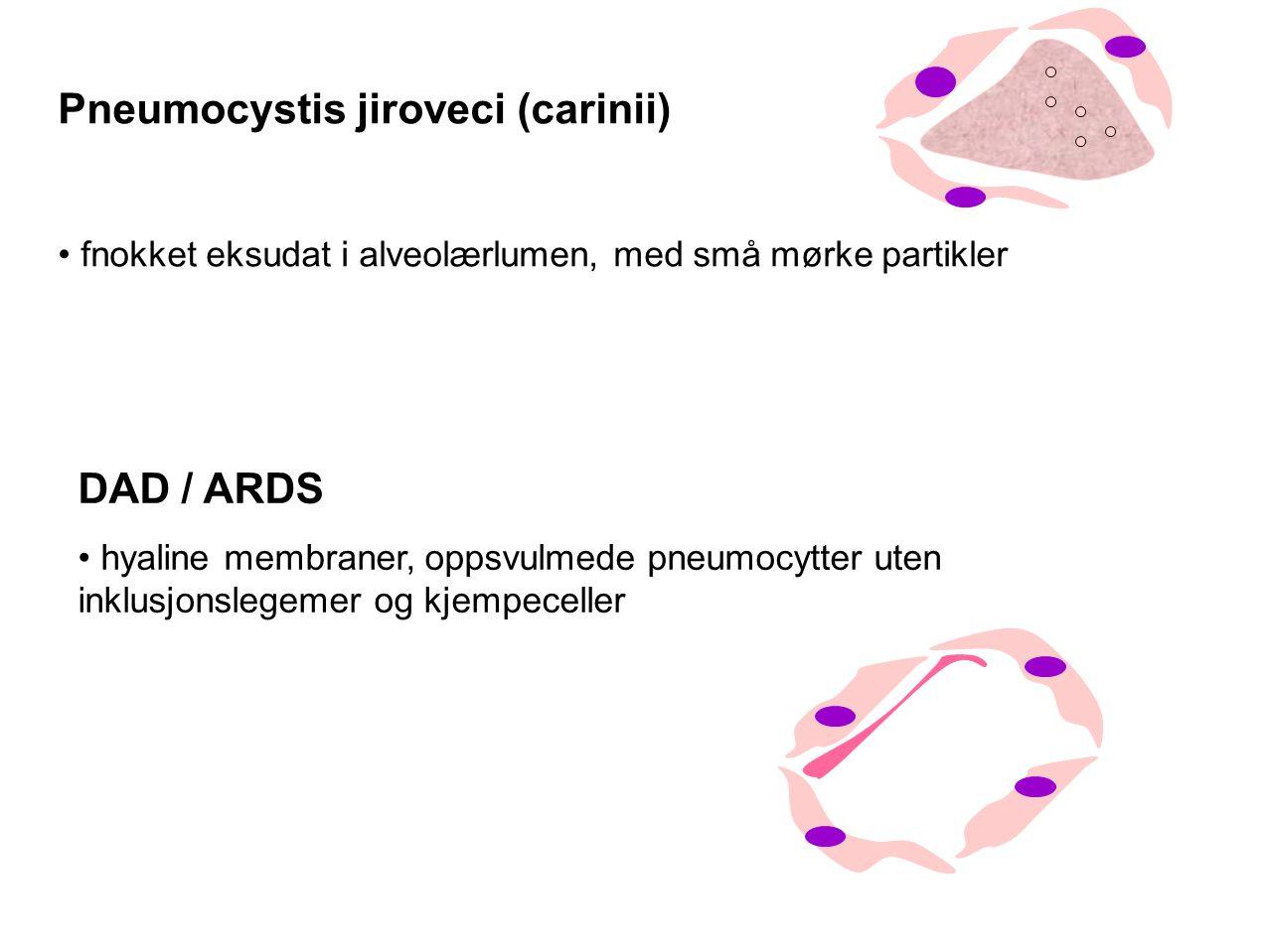 Pneumocystis jiroveci (carinii)