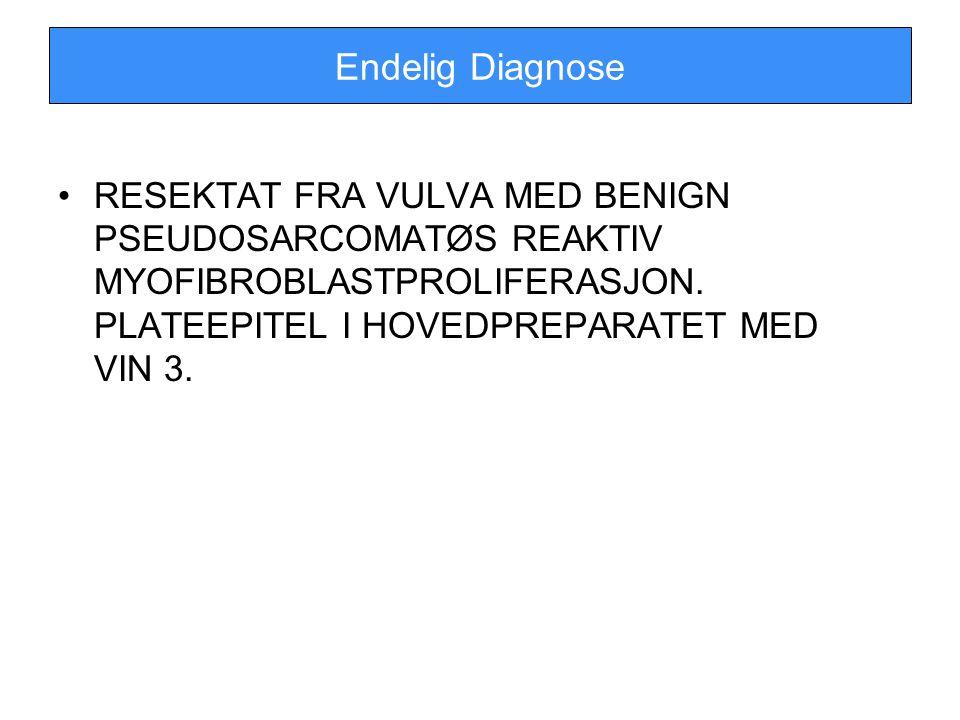 Endelig Diagnose RESEKTAT FRA VULVA MED BENIGN PSEUDOSARCOMATØS REAKTIV MYOFIBROBLASTPROLIFERASJON.